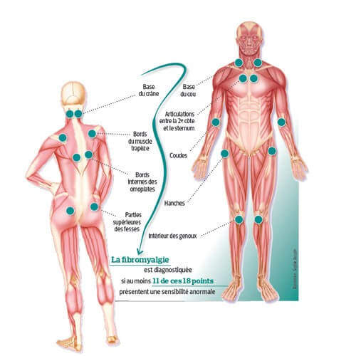 fibromyalgie-points
